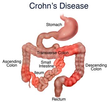enfermedad-de-crohn