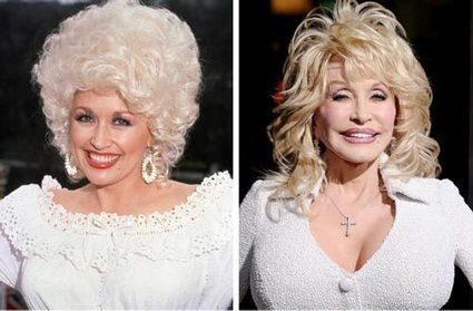 Dolly Parton Plastic Surgery Before & After | Celebrity Plastic Surgery | Scoop.it