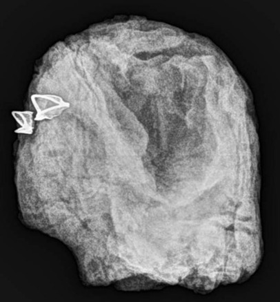X-rays and the statues eyes | Egyptology and Archaeology | Scoop.it