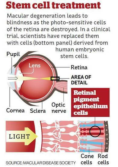 Stem cell trial cures blindness for many patients - with no side effects | Stem Cells & Cell Culture | Scoop.it