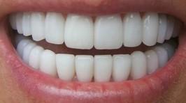 Santé : Les tarifs dentaires vont-ils baisser en 2014 ? | News Assurances | Seniors | Scoop.it