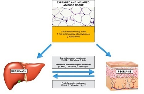 Relationship between Non-Alcoholic Fatty Liver Disease and Psoriasis: A Novel Hepato-Dermal Axis? | Hepatitis C New Drugs Review | Scoop.it