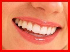 Answers to Your Questions About Teeth Whitening at Home Kit. ~ badbreathvideo.com | Bad breath | Scoop.it