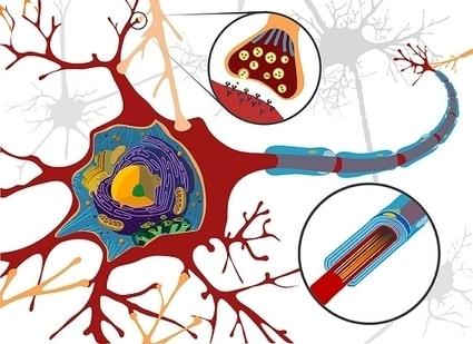 21 de junio, Día Mundial ELA. Pacientes de ELA reclaman más Fisioterapia para tratar la debilidad y la atrofia muscular | FISIOTERAPIA | Scoop.it