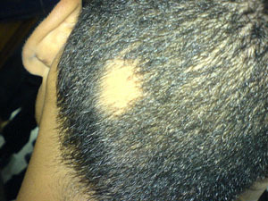 Hair Loss Causes – Taking Common Hair Diseases Seriously | Hair Transplantation | Scoop.it