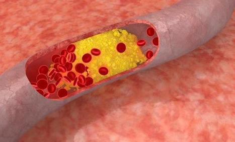 Lab-made Cholesterol Can Help Treat Heart Disease | Biomedical Beat | Scoop.it