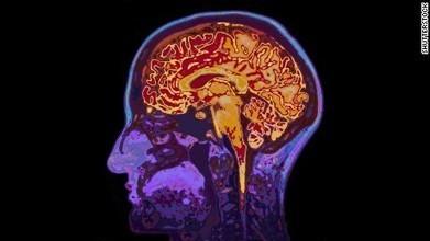 How language is processed inside your brain | ADQUISICIÓN DE SEGUNDAS LENGUAS-SECOND LANGUAGE ADQUISITION | Scoop.it