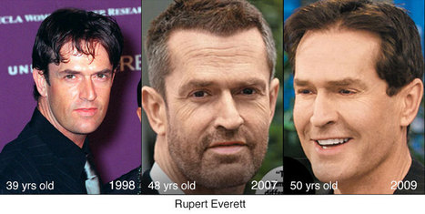 8 Celebrities Who Have Gone From Young, To Old, To Young Again Through Plastic Surgery!   Celebrities Plastic Surgery   Scoop.it