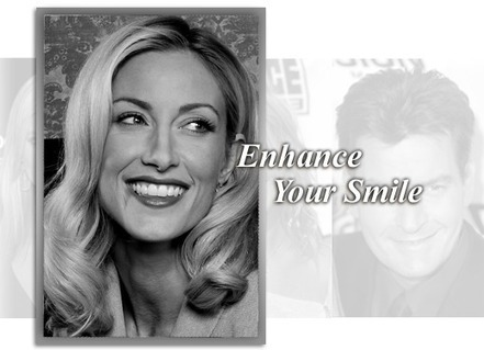 Tooth Whitening in Los Angeles | At Home Whitening Systems Los Angeles | Cosmetic Dentistry | Scoop.it