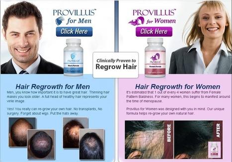 Provillus - hair loss treatment   Hair Loss Treatment   Scoop.it