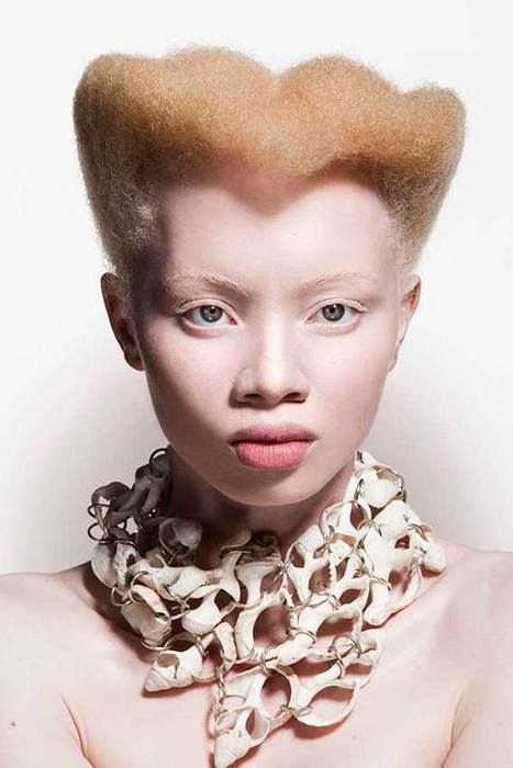 """I'm a Different Shade of Normal"" – South African Albino Lawyer, Thando Hopa turns Model to Challenge Perception of Albinism 