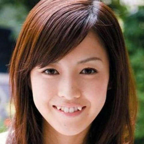 Japanese Snaggletooth Craze Spawns Dental Procedures, Girl Group   Xposed   Scoop.it
