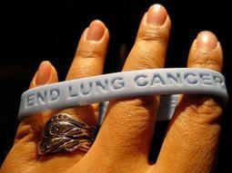 Lung Cancer Symptoms | Lung Cancer Symptoms | Scoop.it