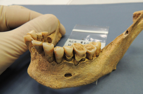 Neolithic Caveman Found to Have Modern Oral Diseases | Aux origines | Scoop.it
