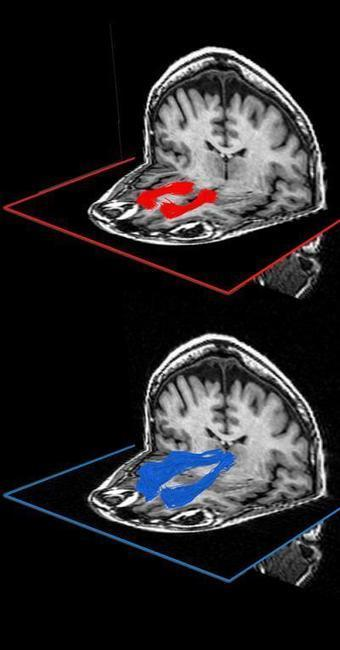 Trouble coping with the unfamiliar as you age? Blame your white matter | Science Codex | Brain Momentum | Scoop.it