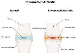 Arthritis- Types, Symptoms and Treatment | Alldaychemist | Scoop.it