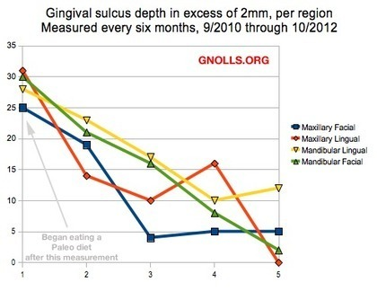 Dental Health And The Paleo Diet: Gingival Sulcus Depth - Gnolls.org | EvoMed and cPNI | Scoop.it