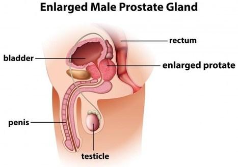 Herbal Remedies for prostate enlargement-(BPH)Ayurveda & yoga   Planet Ayurveda   Scoop.it