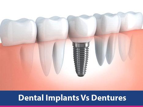 Dental Implants Vs Dentures | Dental health conditions, Treatments & remedies. | Scoop.it