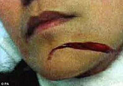 The Hounslow Slasher: Black man randomly slashing white women's throats in thestreet | Race & Crime UK | Scoop.it