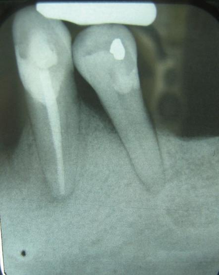 Top Ten Causes of Periodontal Disease | Dental Services | Scoop.it
