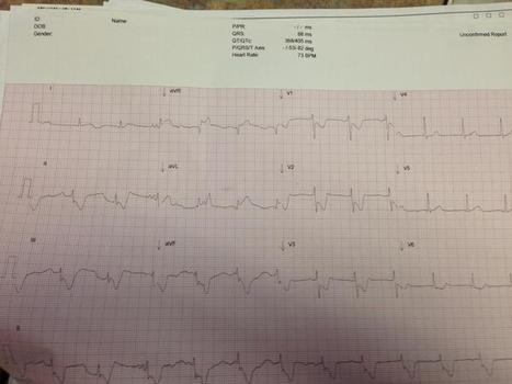 ECG Challenge : What is the diagnosis? | random | Scoop.it