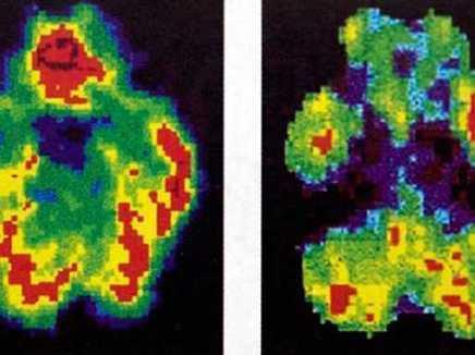 A Murderer's Brain Vs. A Normal Brain | Social Neuroscience Advances | Scoop.it