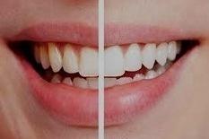 Best Dental Services in Bangkok, (Thailand) : Laser Teeth Whitening in Bangkok, Thailand   Dental Treatment Thailand   Scoop.it