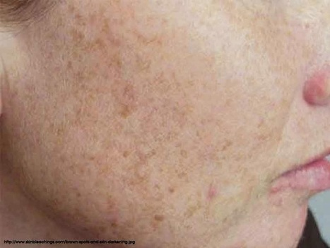 Main Causes of Brown Spots and Skin Darkening | Health Tips | Health Tips | Scoop.it