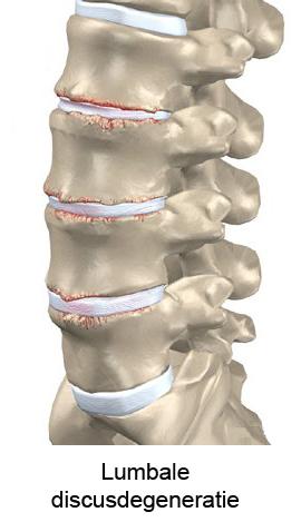 pijn in bovenrug en nek
