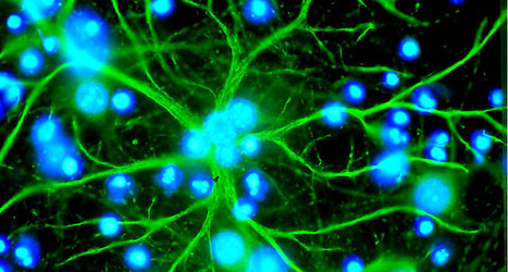 Gift-giving brain cells are lifeline to injured nerve cells | Biologie in de klas | Scoop.it