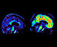 Brain Scan for Alzheimer's - FDA approved a new plaque-tracking dye | Amazing Science | Scoop.it