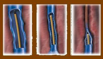 Questions about Vein Procedures | Medical Questions and Answers | Scoop.it