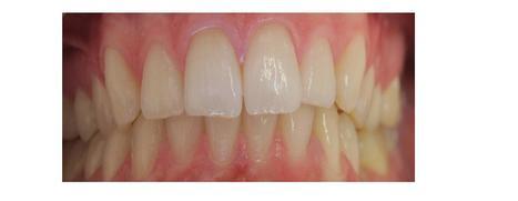 Dentures Sterling VA   Ridgetop Dental   Scoop.it