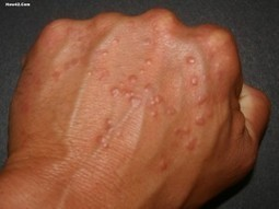 Knowing symptoms of virus in our hands | Tips | Scoop.it