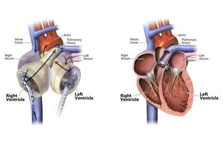 Successful heart transplant after using experimental artificial heart | Longevity science | Scoop.it