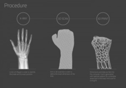 3D Printing Creates Unique Exoskeleton For Broken Bones | 3D-Print Tech | Scoop.it