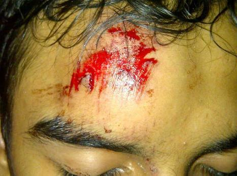 Protester injured by a sound bomb - 9/29/2011 | Human Rights and the Will to be free | Scoop.it
