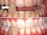 Tooth Whitening Dentist | Tooth Bleaching | Laser Tooth Whitening Delhi | Best Cosmetic Surgeons in delhi | Scoop.it