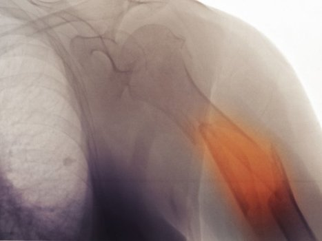 It's old blood, not old bones, that makes fracture healing difficult among the elderly | Amazing Science | Scoop.it