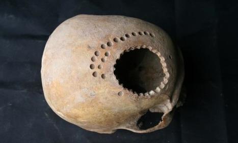 La trépanation, une technique courante au Pérou il y a 1000 ans | Santé - Health | Science | Scoop.it