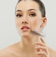 Perawatan Wajah, Rambut dan Kepala Wanita: Perawatan Wajah Berjerawat | Tas Wanita Cantik | Scoop.it