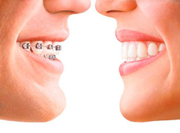 Invisalign vs Braces - Which is best for teeth straightening in Stuart? | Francis J. DuCoin DMD | Scoop.it