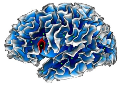 Could Autism Be Hiding in a Fold of the Brain? | Applied Neuroscience | Scoop.it