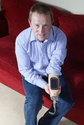 Man embeds smartphone into prosthetic arm | Digital in Healthcare | Scoop.it