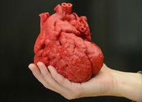 Un cuore stampato in 3D ha aiutato ad operare un paziente - Fabzine.it   Digital fabrication   Scoop.it