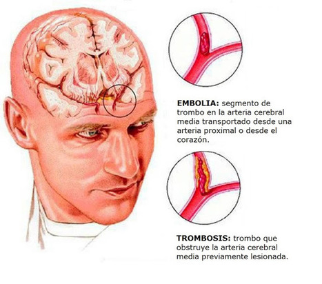Ictus (stroke o ataque cerebral) ACV | Medicusmeo | Salud Publica | Scoop.it