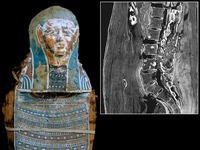 Mummy has the Oldest Known Case of Prostate Cancer in Egypt | Amazing Science | Scoop.it