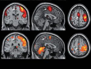 Sex on the brain: What turns women on, mapped out | Mind and Brain | Scoop.it