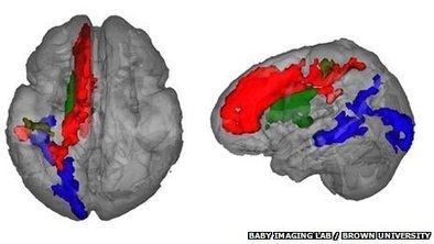 Toddler brain scan language insight.   someone somewhere   Cognitive neurosciences of language   Scoop.it